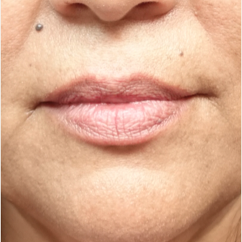 45-54 year old woman treated with Restylane before 3280236