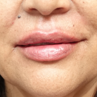 45-54 year old woman treated with Restylane after 3280236