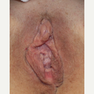 53 year old after 3 ThermiVa treatments before 2784664
