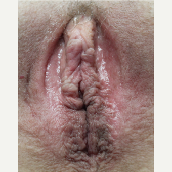 53 year old after 3 ThermiVa treatments after 2784664