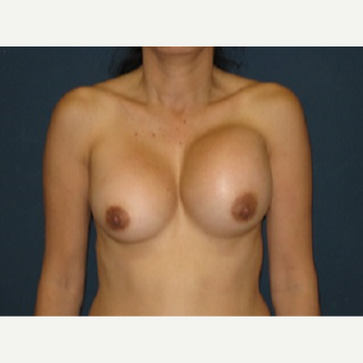 35-44 year old woman treated with Breast Implant Revision before 3344022