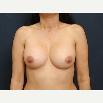 35-44 year old woman treated with Breast Implant Revision after 3344022