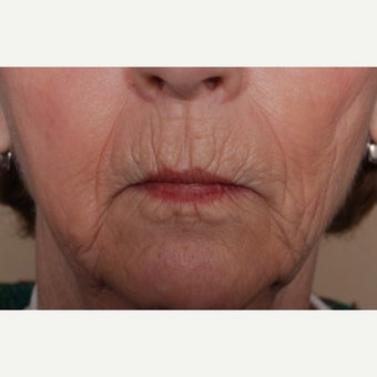 Hetters Peel around the mouth and Fat Injections before 2112883