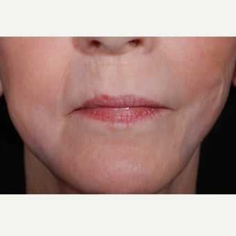 Hetters Peel around the mouth and Fat Injections after 2112883