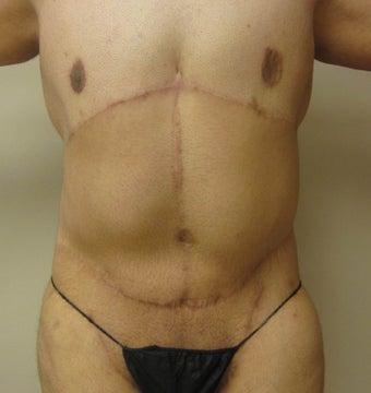 28 year old male who underwent body lift after 1422641