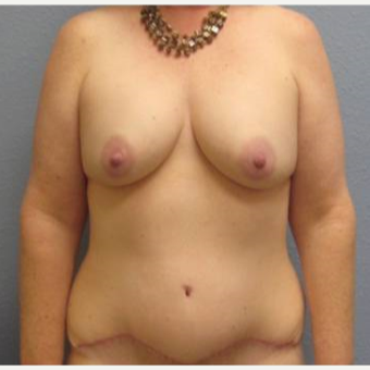 45-54 year old woman treated with Mommy Makeover after 3726275