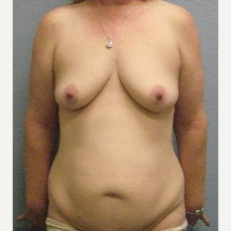 45-54 year old woman treated with Mommy Makeover before 3726275