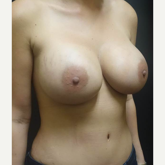 35-44 year old woman treated with Breast Implant Revision after 3447007