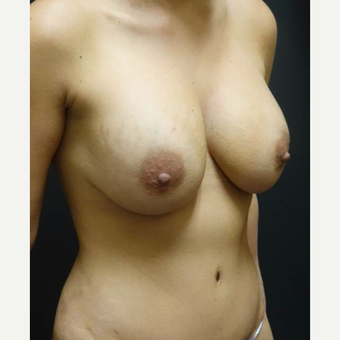 35-44 year old woman treated with Breast Implant Revision before 3447007