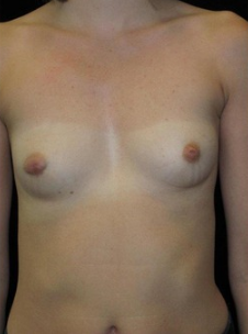 23-24 year old Breast Augmentation before 3103563