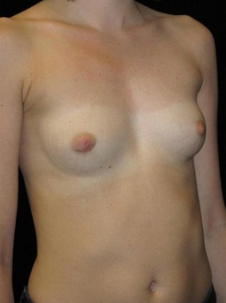 23-24 year old Breast Augmentation 3103563