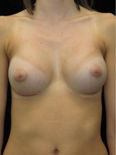 23-24 year old Breast Augmentation after 3103563