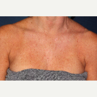 49 year old woman treated with Fraxel Dual  Laser one time before 2839357