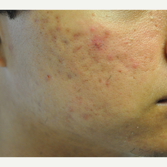 17 or under year old man treated with Laser Genesis for Acne before 3219641