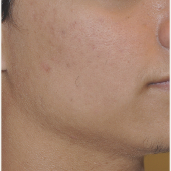 17 or under year old man treated with Laser Genesis for Acne after 3219641