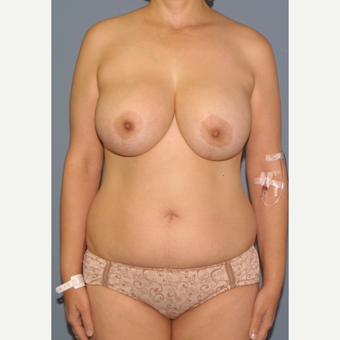 45-54 year old woman treated with Breast Lift before 3452826