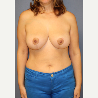 45-54 year old woman treated with Breast Lift after 3452826