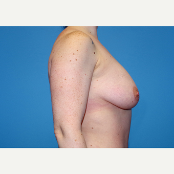 25-34 year old woman treated with Inspira Breast Implants before 3440132