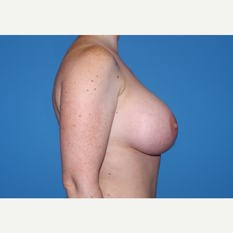 25-34 year old woman treated with Inspira Breast Implants after 3440132