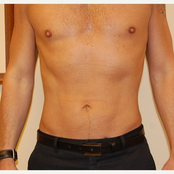 35-44 year old man treated with Smart Lipo after 2099670