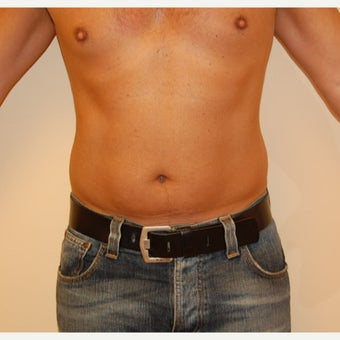 35-44 year old man treated with Smart Lipo before 2099670