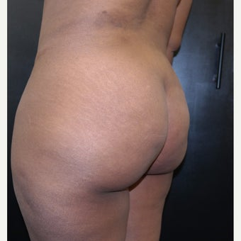 35-44 year old woman treated with Brazilian Butt Lift before 2593614
