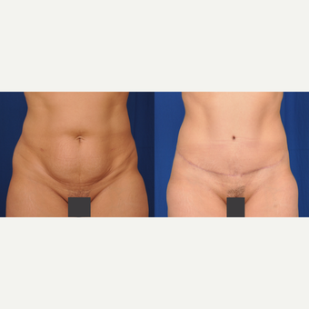 35-44 year old woman treated with Tummy Tuck before 3590264