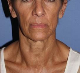 Face and Neck Lift with Fat Grafting, 60 year old