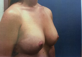 23 year old with breast volume restored after weight loss after 2371117