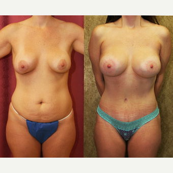 25-34 year old woman treated with Mommy Makeover before 3289173