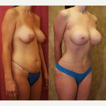 25-34 year old woman treated with Mommy Makeover after 3289173