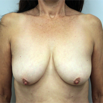 35-44 year old woman treated with Breast Lift before 3366486
