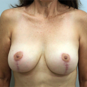35-44 year old woman treated with Breast Lift after 3366486