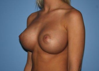 Projection Is Priority for Early 20s Breast Implant Patient after 1359854