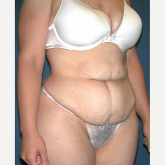 35-44 year old woman treated with No-Drain Tummy Tuck before 3649341
