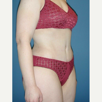 35-44 year old woman treated with No-Drain Tummy Tuck after 3649341