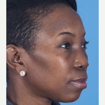35-44 year old woman treated with African American Rhinoplasty after 3115282
