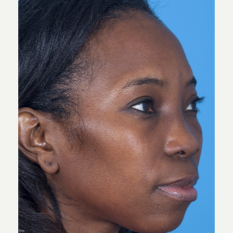 35-44 year old woman treated with African American Rhinoplasty before 3115282