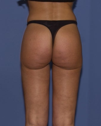 28y.o Laser assisted Liposuction after 719836