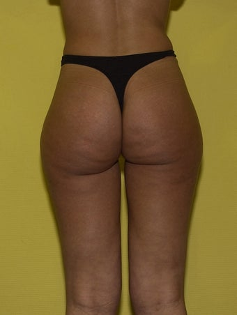 28y.o Laser assisted Liposuction before 719836
