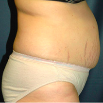 40 year old woman treated with Tummy Tuck before 3578632