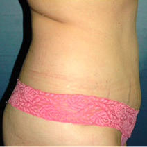 40 year old woman treated with Tummy Tuck after 3578632