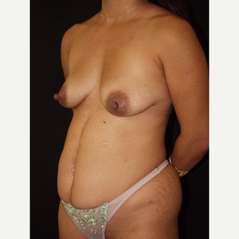 30 year old woman treated with Breast Lift with Implants before 3846493