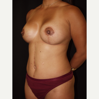 30 year old woman treated with Breast Lift with Implants after 3846493