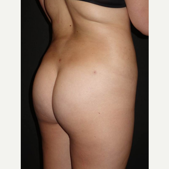 18-24 year old woman treated with Brazilian Butt Lift after 3014095