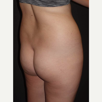 18-24 year old woman treated with Brazilian Butt Lift before 3014095