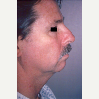 55-64 year old man treated with Facelift before 3539005