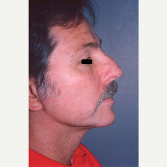 55-64 year old man treated with Facelift after 3539005