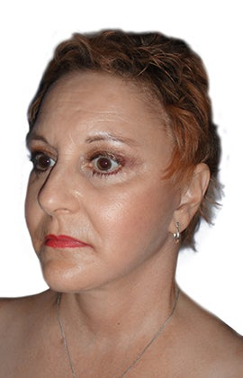 Facelift, necklift, lower blepharoplasty, browlift 345196