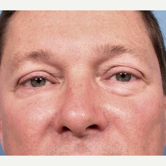 35-44 year old man treated with Eyelid Surgery before 2173377